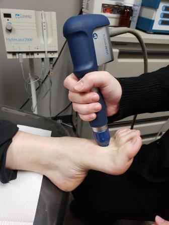 Shockwave Therapy applied to foot in Calgary